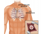 Medical Procedure Illustration