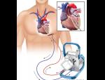 Maquet Cardiohelp Medical Illustration