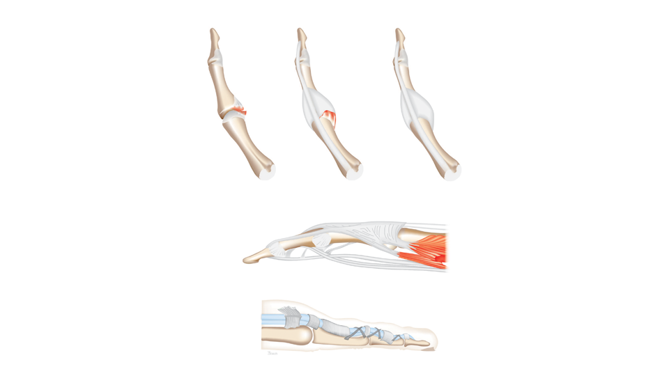 Finger Anatomy Uahs Biocommunications