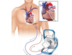 Maquet Cardiohelp Medical Illustration